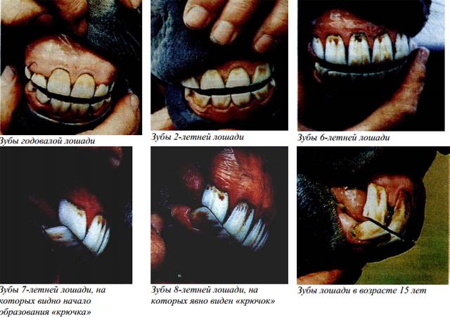 Зубы во время старения