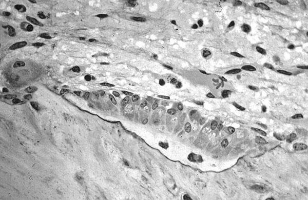Что такое костная ткань и ее строение