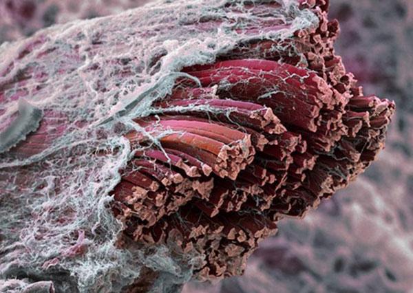 Что собой представляют мышечные клетки?
